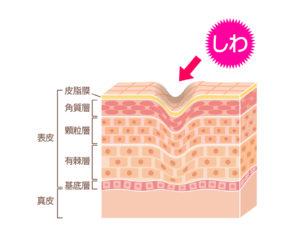 紫外線が原因のシワと改善法